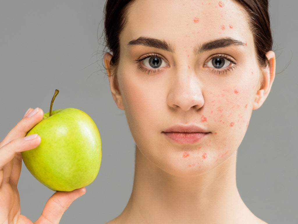 How Long Does It Take For Diet To Affect Skin?