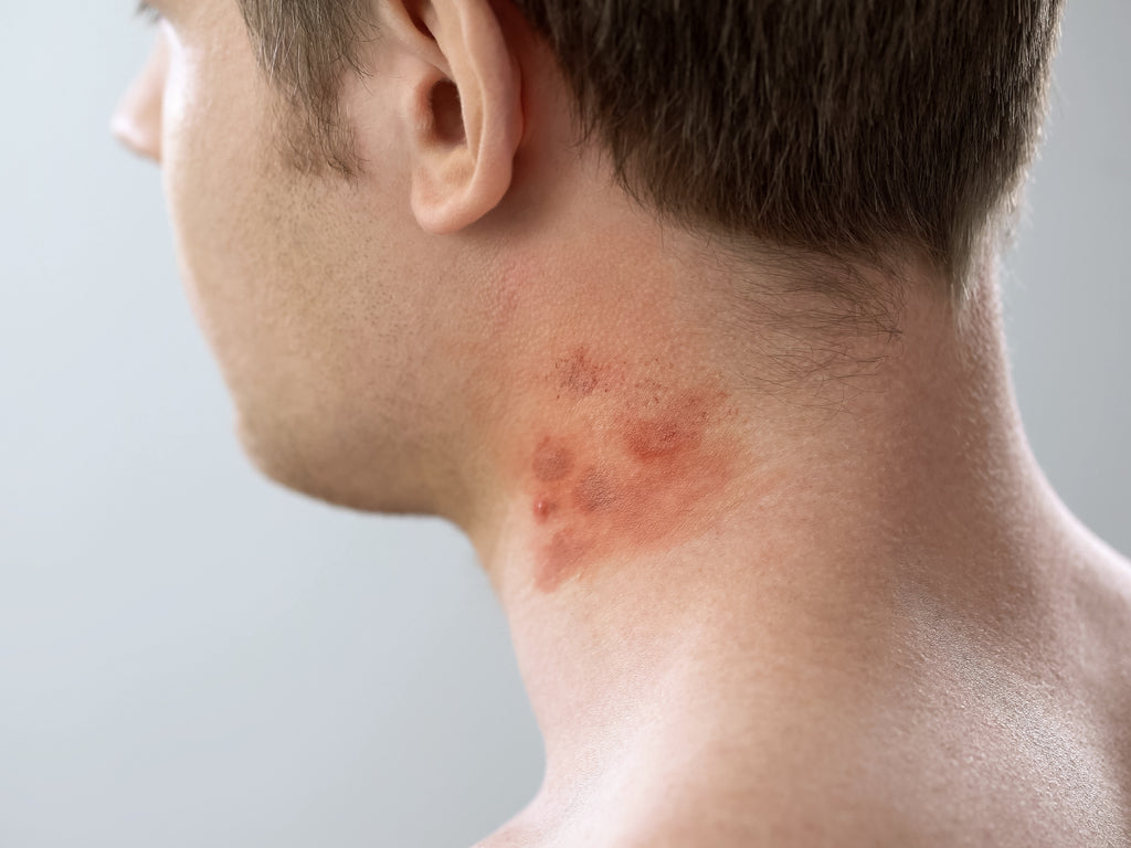 Can Contact Dermatitis Look Like Acne?