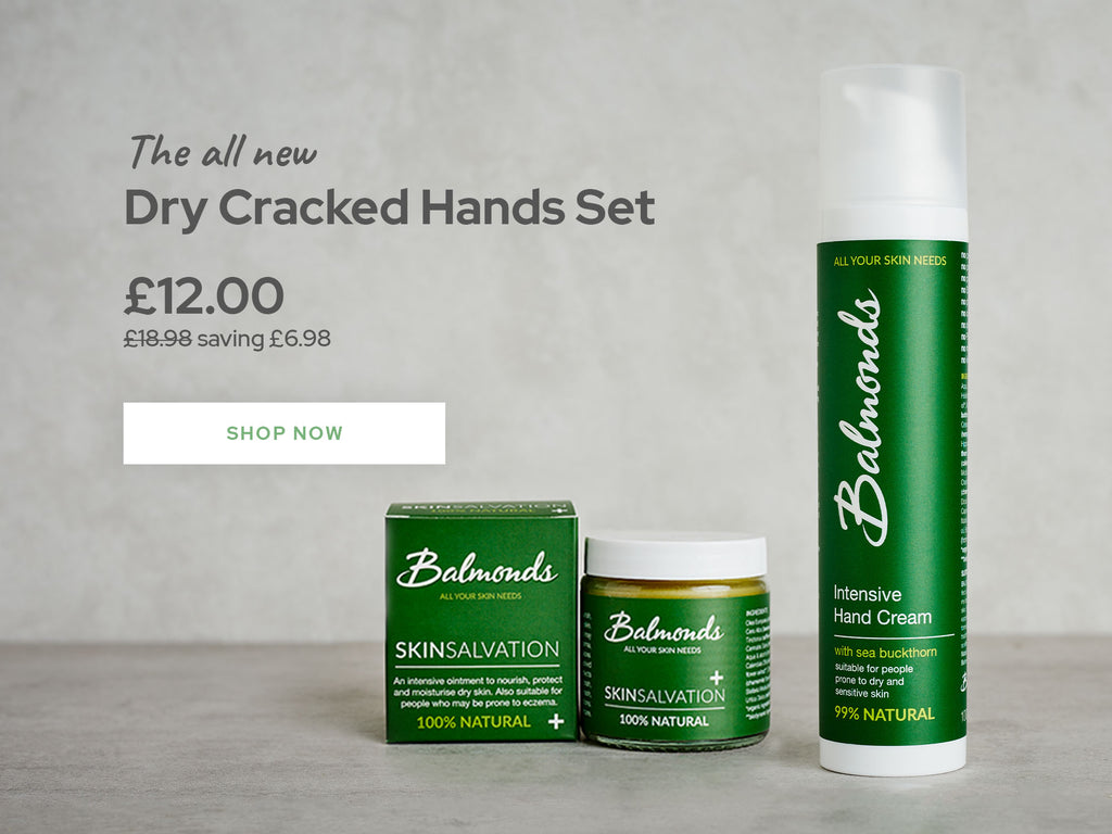 Dry cracked hands set