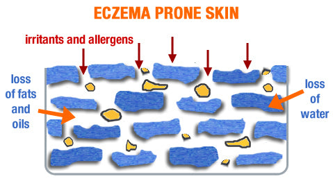 Eczemataneous Skin and what goes wrong