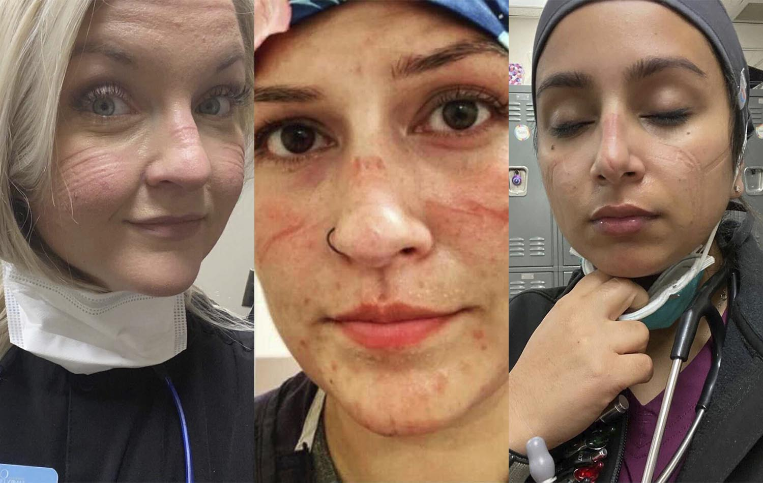 Healthcare workers with skin irritation from PPE