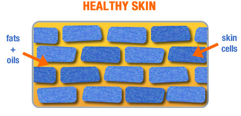 Healthy Skin - how the skin protects you - dry skin on the body