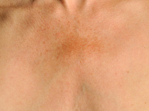 Hyperpigmentation on white skin