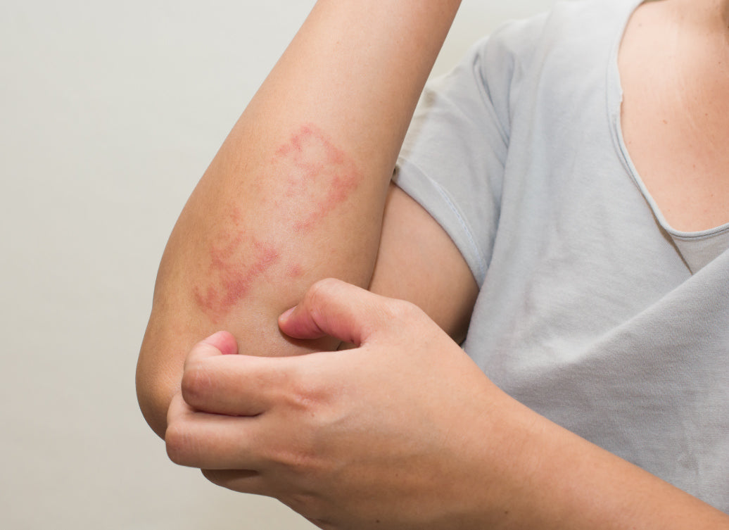 What's Usually The First Sign Of Dermatitis?