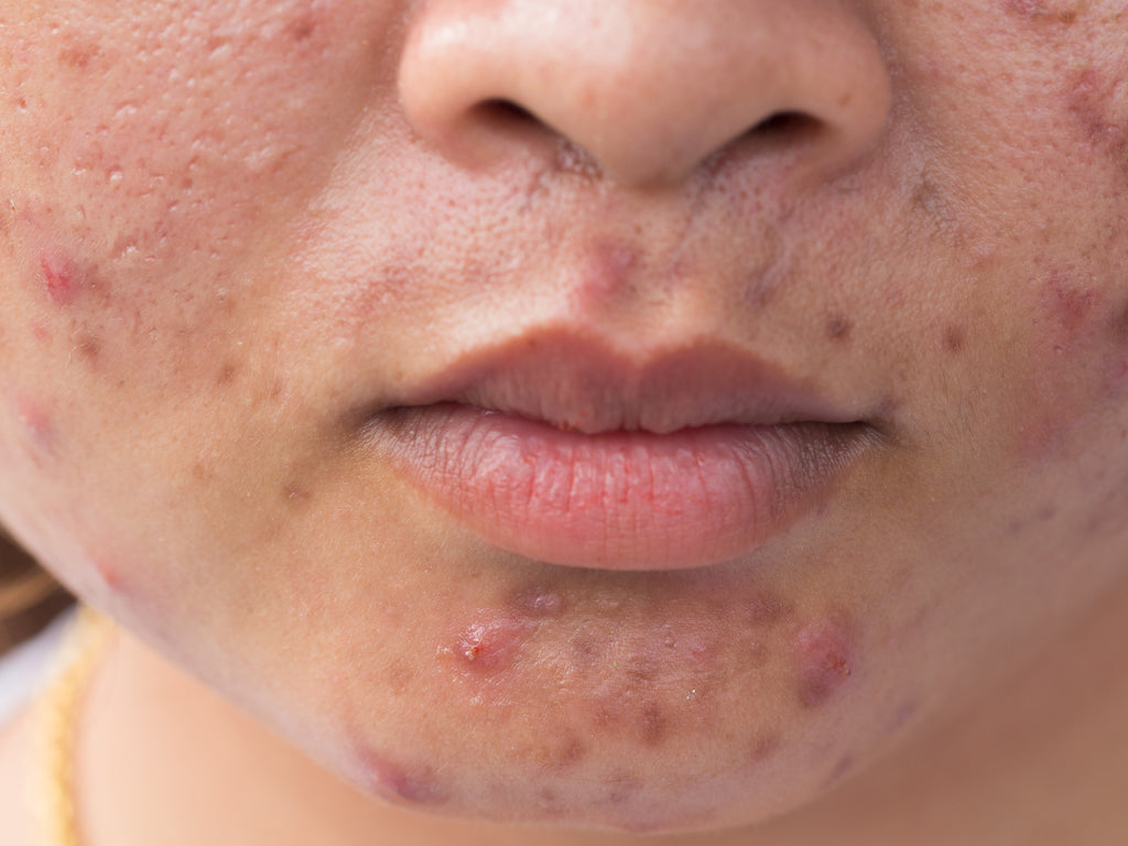 What Does Acne Rosacea Look Like?