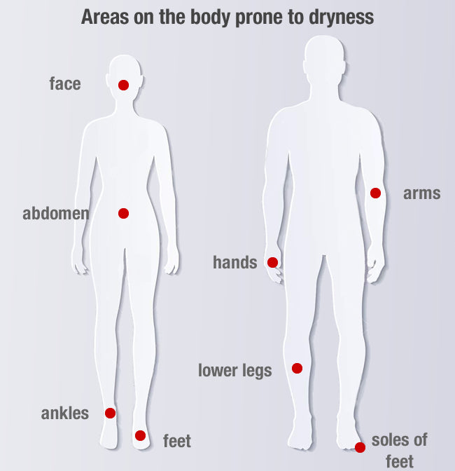 Areas of the body prone to dryness which can also develop into eczema