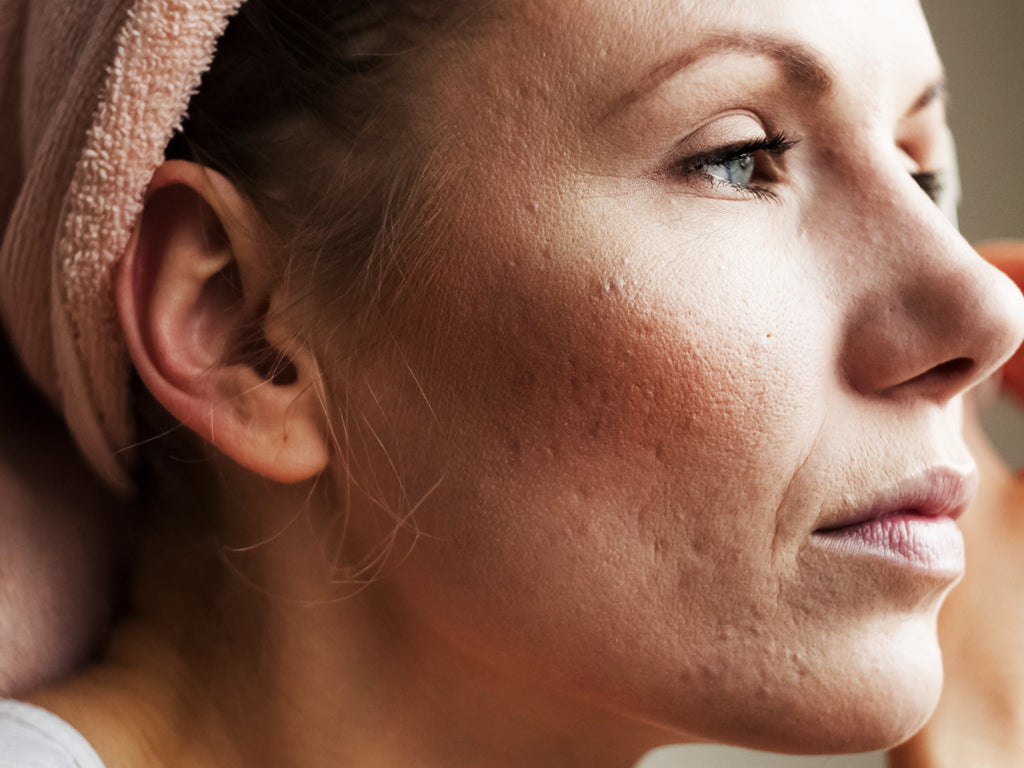 Top 6 Triggers of Acne Rosacea