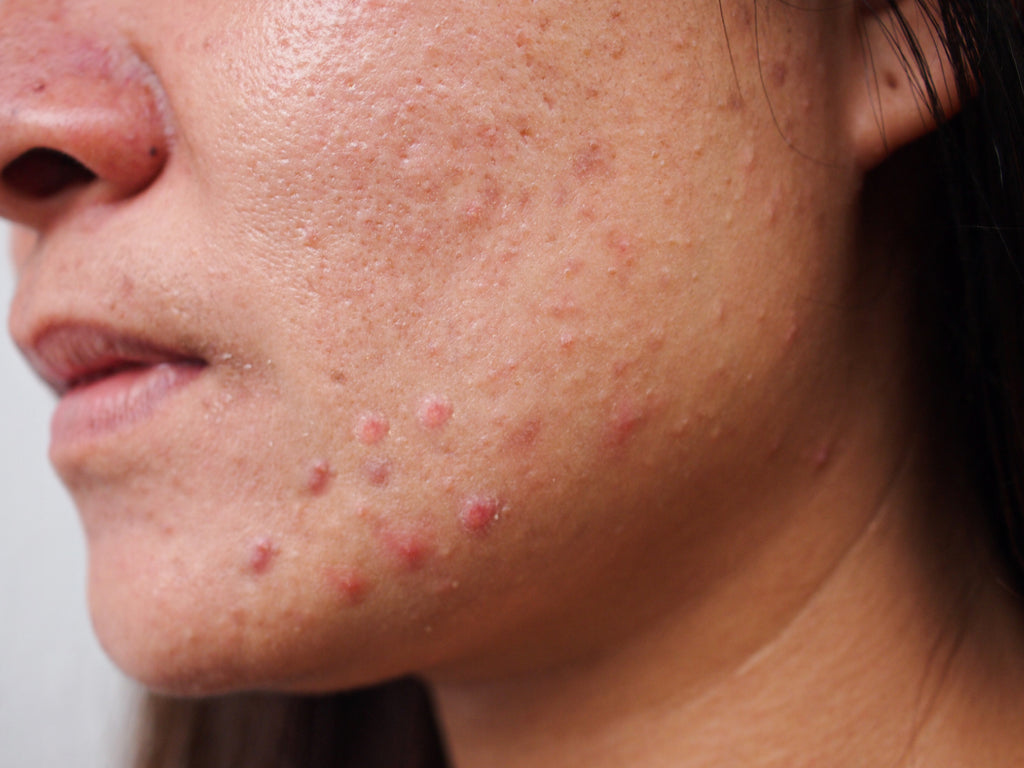 Is It Possible To Get Rid Of Acne Rosacea?