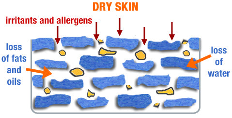 Dry Skin - loss of moisture and fats causes irritation