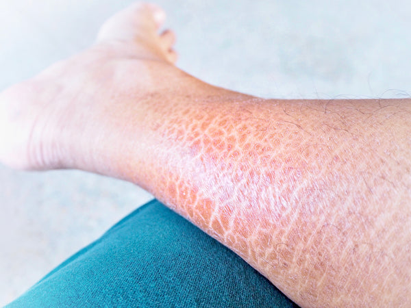 symptoms of ichthyosis