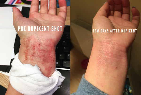 Louise King wrists before and after Dupixent