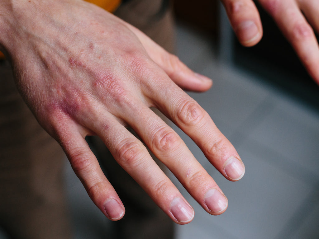 Cracked skin on hands home remedies