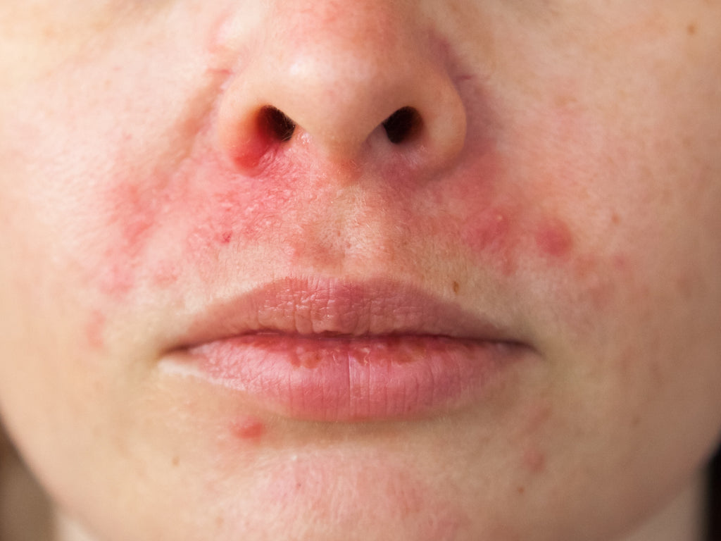 What Home Remedies Are Good For Perioral Dermatitis?