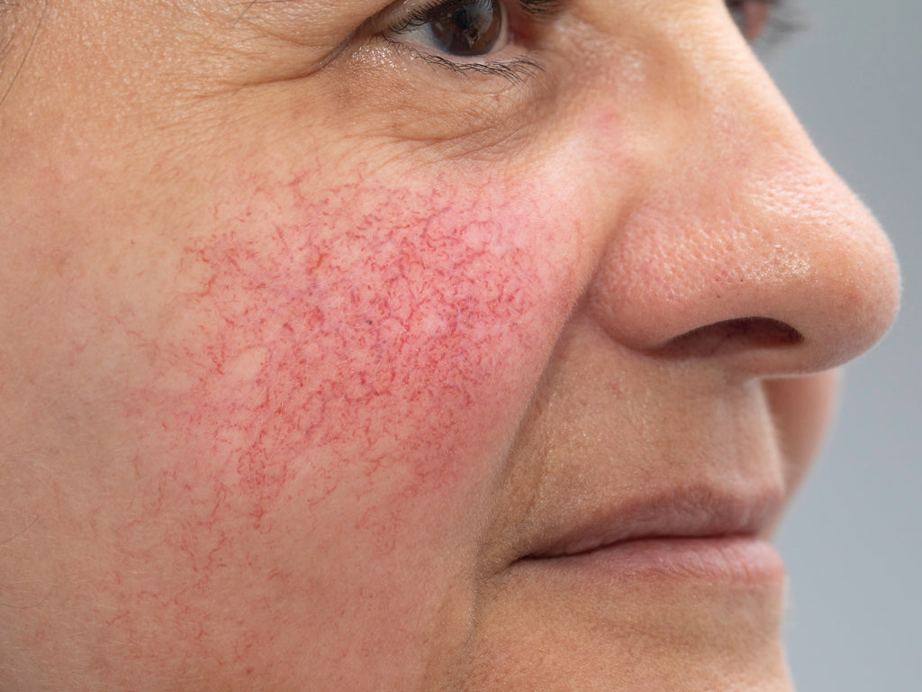 What Happens If Rosacea Is Left Untreated?   Balmonds