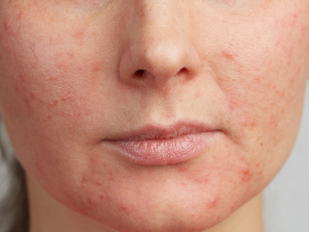 Should You Moisturize Perioral Dermatitis?