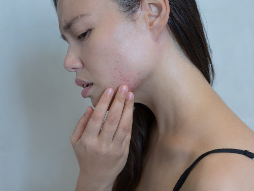triggers for perioral dermatitis