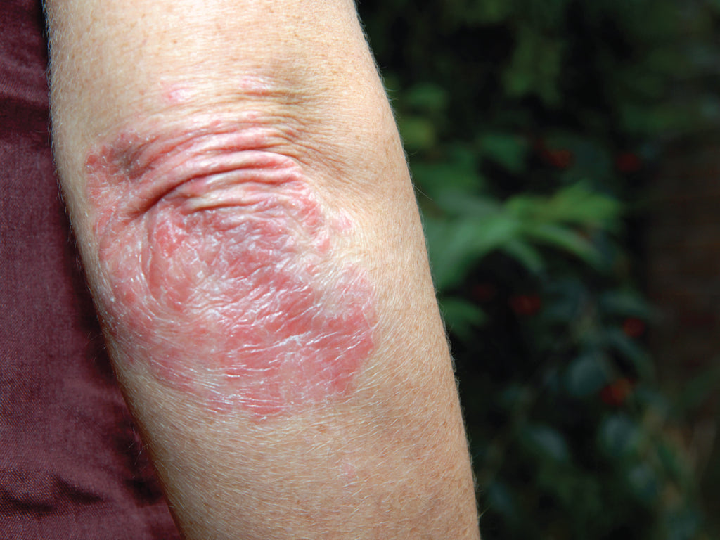 What causes psoriasis