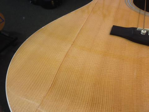 Martin Custom with Severe Top Crack