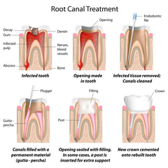 Dental - Root Canal (DER)