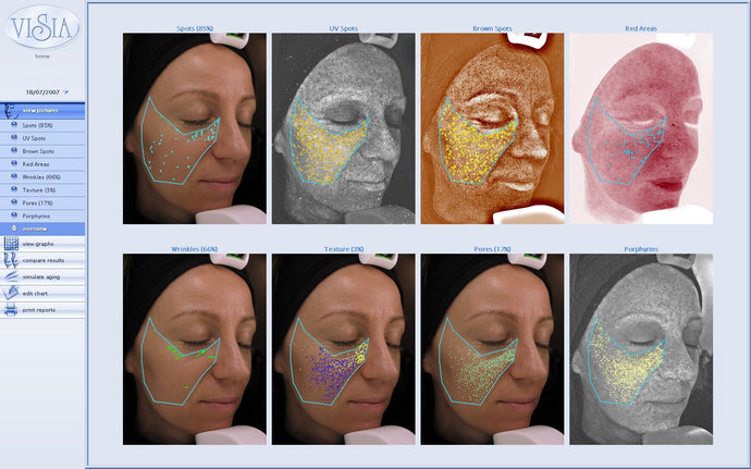 Environ Skin Analysis Day - Tuesday, 28 January 2020