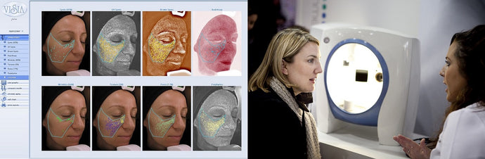 ENVIRON Skin Analysis Day - Tuesday 5th November