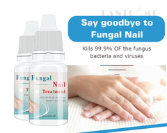 Fungal Nail Treatment Essence Nail And Foot Fungus Removal Feet Care Gel
