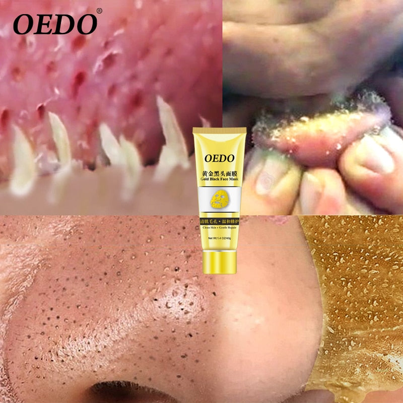 OEDO Gold Remove Blackhead Mask Shrink Pore Improve Rough Skin Acne Shills Blackhead Remover Mask Facial Moisturizing Cream