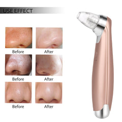 Electric Pore Cleaner