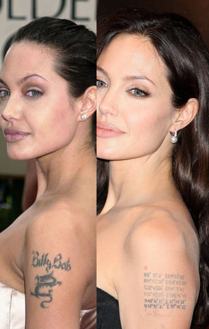 Celebrity Tattoo Removal: Before and After | Temporary Tattoo Blog