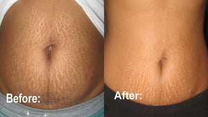 Anti Stretch Mark Cream