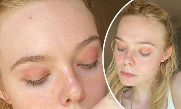 Elle Fanning's No-Makeup Selfie Shows off Her Eczema