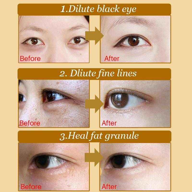 Crystal Eye Bag Collagen Patch 20pcs.