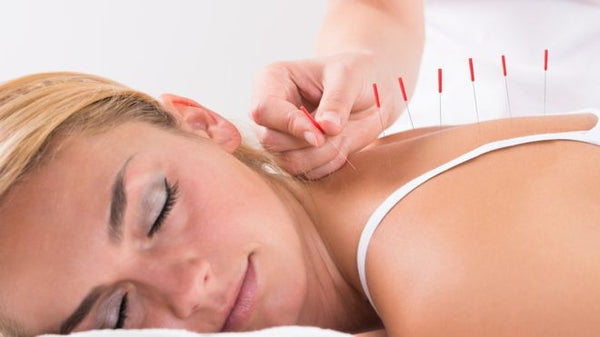 Does Acupuncture Work For Everyone?