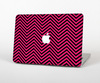 The Black & Pink Sharp Chevron Pattern Skin Set for the Apple MacBook Air 11""