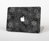 The Black & White Floral Lace Skin Set for the Apple MacBook Air 11""