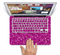 "The Bright Pink Glitter Skin Set for the Apple MacBook Pro 15"" with Retina Display"