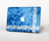 The Vibrant Blue & White Floral Lace Skin Set for the Apple MacBook Air 13""