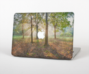 "The Vivia Colored Sunny Forrest Skin Set for the Apple MacBook Pro 15"" with Retina Display"