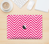 "The White & Pink Sharp Chevron Pattern Skin Kit for the 12"" Apple MacBook"