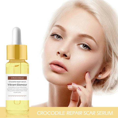 Image of Crocodile Serum for Stretch Marks & Scar Removal 15ml