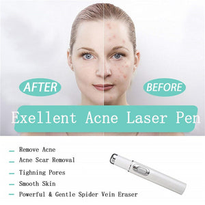 Medical Blue Light Therapy Laser Treatment Pen scars ,spider veins Removal