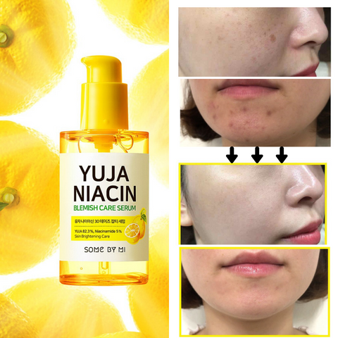 Some By Mi Yuja Niacin Blemish Care Serum Glam Touch UK