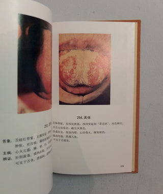 Catalogue of Tongue Coating Diagnoses in Chinese Medicine by People's Medical Publishing House}