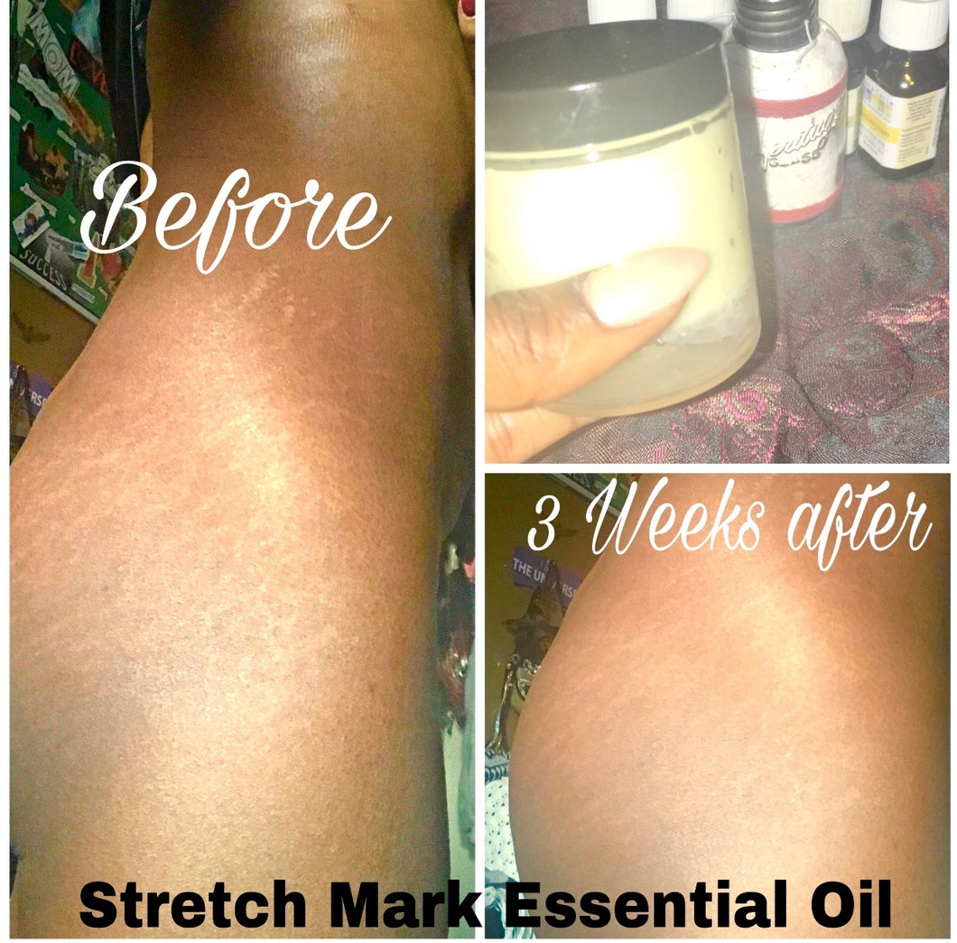Stretch Mark Solution