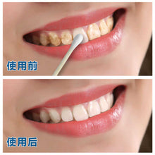 Load image into Gallery viewer, Teeth Whitening