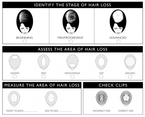 Ludvig Hair Loss Chart