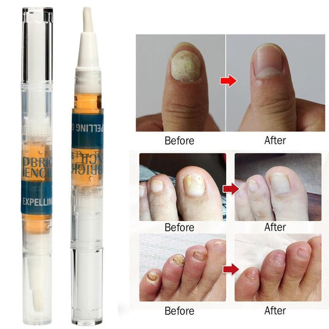 Solution Anti Fongique Infection Nail Bright Pencil Fungal Treatment Anti Fungus Biological Repair 3ml Restores Healthy Nail-American Aura