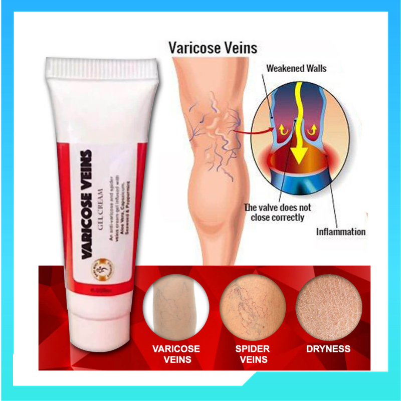 Varicose Veins Remover Cream (Buy 1 Take 1!)