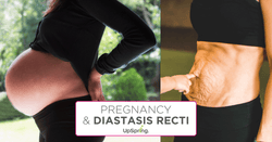 Pregnancy and Diastasis Recti