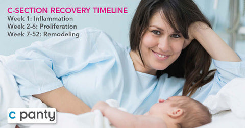 C-Section Recovery Timeline for the First Year